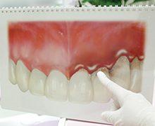 医療法人クローバー デンタルオフィスクローバー 歯周病